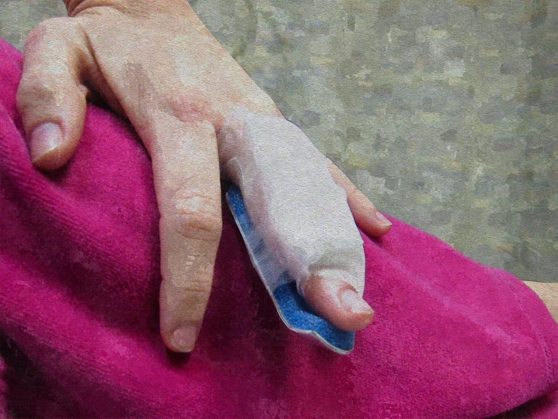 Dynamische Nachbehandlung von Beugesehnenverletzungen mittels HILEI-Schiene