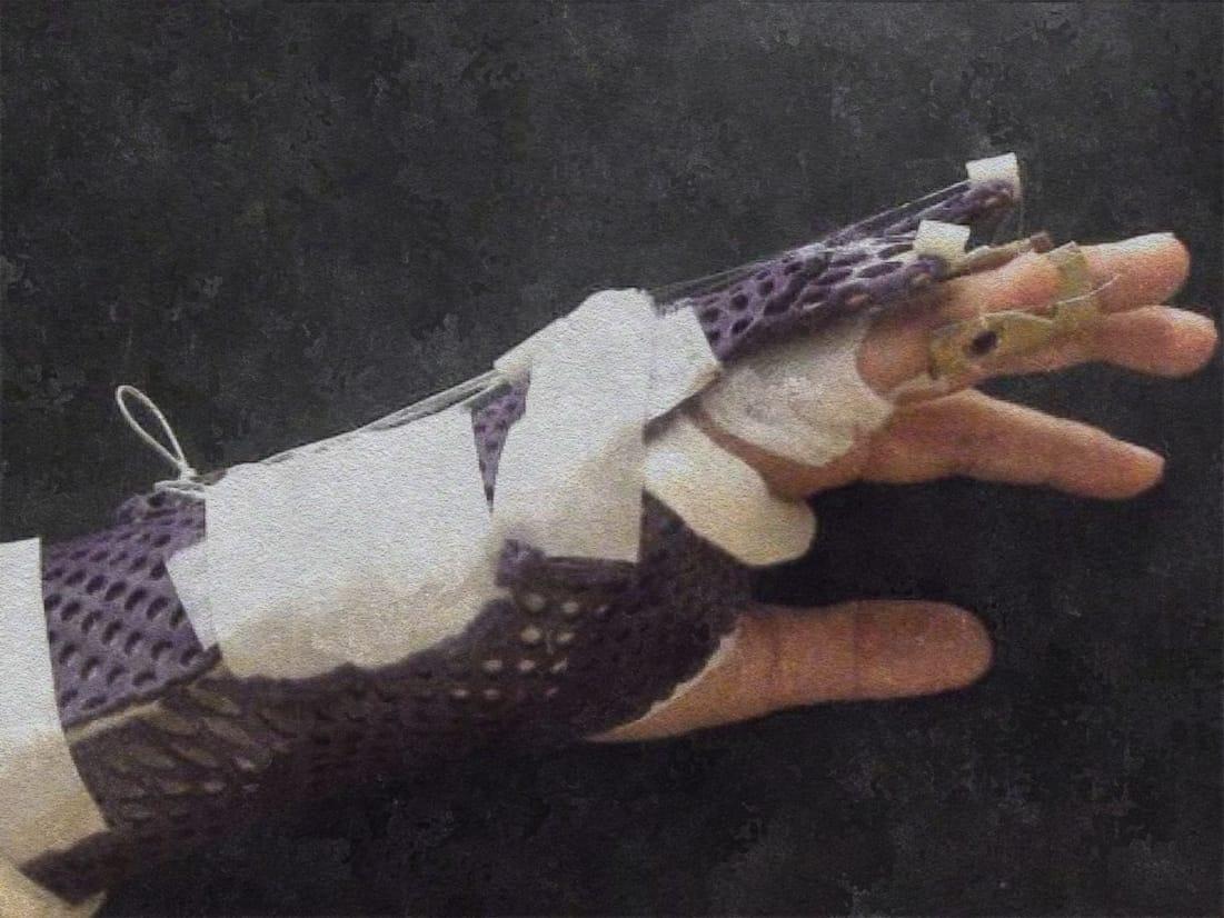 Statische und dynamische Nachbehandlung von Strecksehnenverletzungen