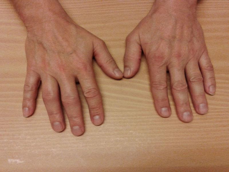 Kapselriss finger Kapselriss am
