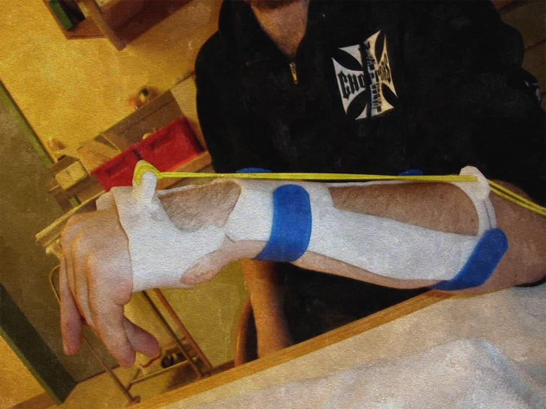 Anfertigung einer dynamischen Handgelenksschiene bei Verletzungen des Nervus radialis und Fallhand
