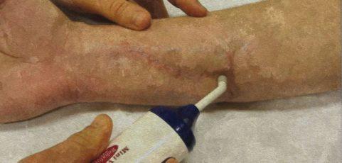Grundlagenwissen Narbe: Physiologie, Assessment und ergotherapeutische Narbenbehandlung